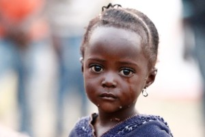 Congolese refugee victim of war